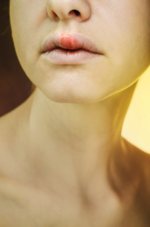 Herpes on the Upper Lip of a Young Woman. Medical Background of a Young Beautiful Girl with Herpes Labialis. Herpes Simplex Virus Stock Photo