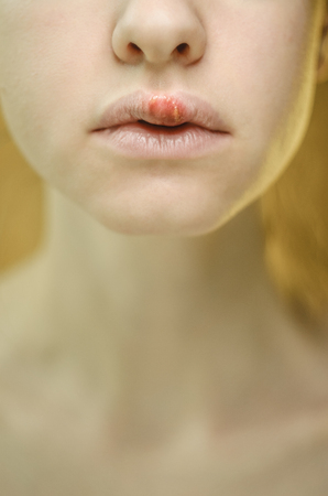 Herpes on the Upper Lip of a Young Woman. Medical Background of a Young Beautiful Girl with Herpes Labialis. Herpes Simplex Virus Imagens