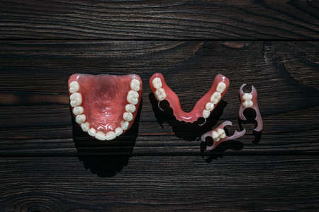 Dentures on a dark background. Close-up of dentures. Dentistry is conceptual photography. Prosthetic dentistry. False teeth. Prosthetics. Close-up of plastic dentures. Teeth on a wooden background