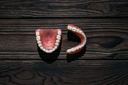Full removable plastic denture of the jaws. A set of dentures on a dark background. Two acrylic dentures. Upper and lower jaws with fake teeth. Dentures or false teeth, close-up. Copy space 版權商用圖片