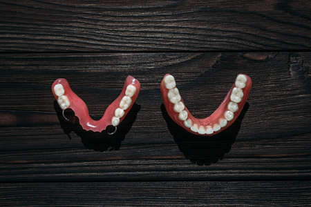 Dentures on a dark background. Close-up of dentures. Removable plastic jaw prosthesis. Prosthetic dentistry. False teeth. Close-up of plastic dentures. Teeth on a black background