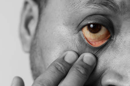 Close up of yellow eye stretched with finger of an Indian male, health care concept