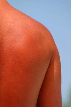 burn: sunburned back