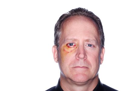 contusion: headshot of a man with a bruised eye from an injury Stock Photo