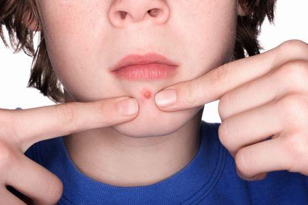 hormonen: Close-up van een jongen klem een puistje Stockfoto