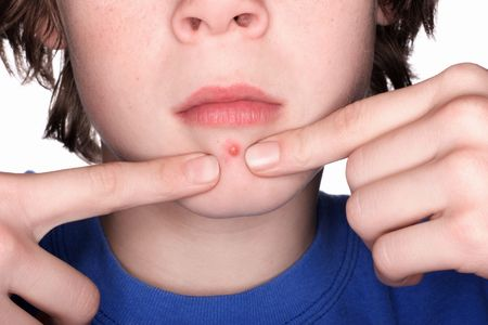 pinching: Closeup of a boy pinching a Pimple Stock Photo