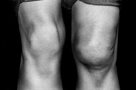 replacements: Closeup black and white photograph of an injured knee compared with a normal one
