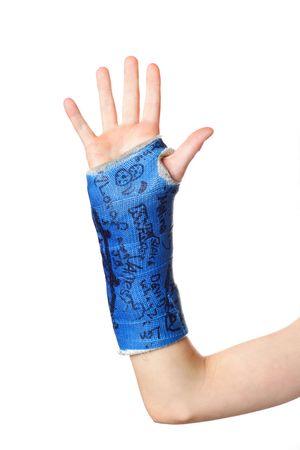 broken wrist: Un ni�o del brazo en un yeso azul