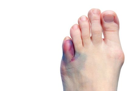 characterized: A picture of a foot with a bruised and swollen toe, the foot also has a bunion characterized by the bone protruding abnormally outward near the ball of the foot.