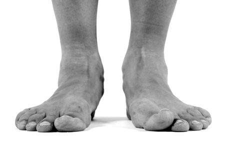 foot fungus: black and white image of flat feet
