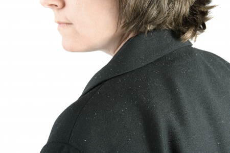 a close up of a middle aged womans sholder with dandruff flakes