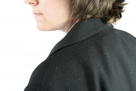 un primer plano de una mujer de mediana edad sholder con copos de caspa