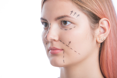 Close up of a surgeon drawing perforation lines on young woman s face for plastic surgery Stock Photo