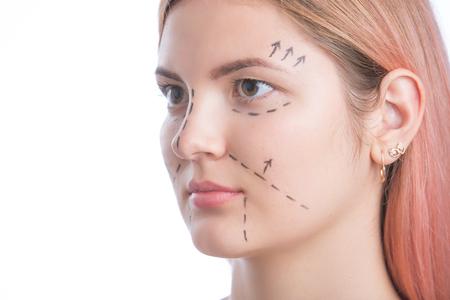 Sluit omhoog van een perforatielijnen van de chirurgentekening op het gezicht van de jonge vrouw voor plastische chirurgie
