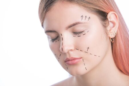 Young woman with perforation lines on her face before plastic surgery operation Stock Photo