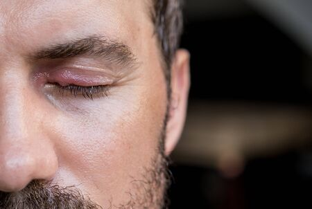 Eye infection. Eye disease. Swollen mens eye. Closeup Zdjęcie Seryjne