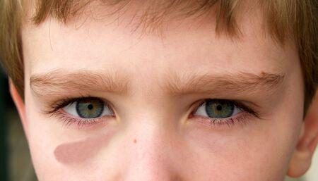 1 つの若い男の子の目の打撲