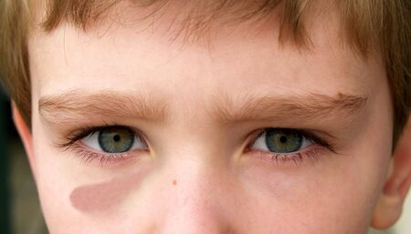 sore eye: eyes of a young boy with one bruised