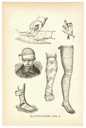 patient's history: Illustrations of bandaged injuries from a vintage medical book Stock Photo