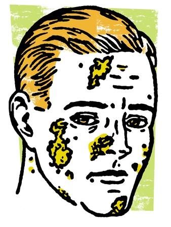 lepra: Una ilustración de un hombre infectado Foto de archivo