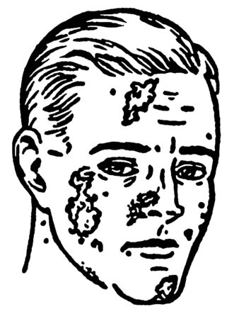 lesions: A black and white version of an illustration of an infected man Stock Photo