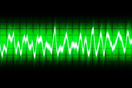 soundwave: illustration of white soundwave on green screen
