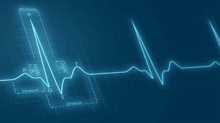 of electrocardiogram: cardiograma