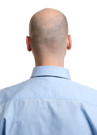 pelade: adult man bald head rear view. Human hair loss