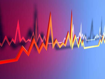 tachycardia: EKG Line 1