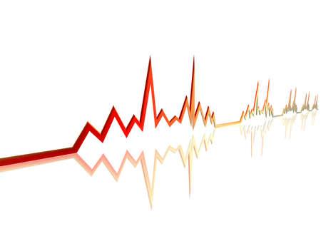 tachycardia: EKG Line 3