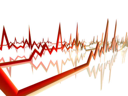 heart bypass: EKG Line 4 Stock Photo