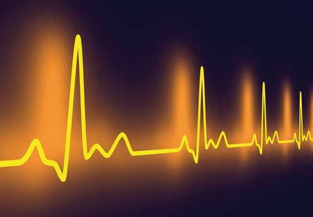 tachycardia: Pulse trace Stock Photo