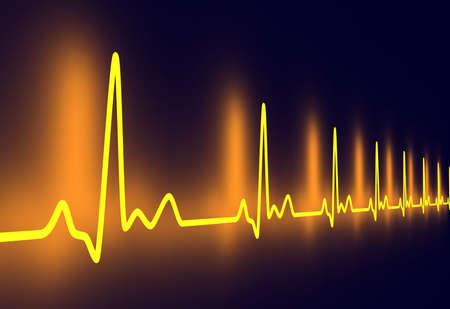 tachycardia: Pulso traza
