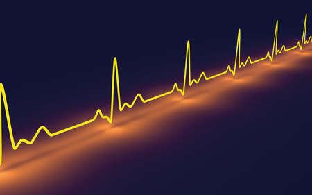 measurements: Pulse trace Stock Photo