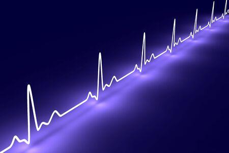 Pulse trace Banco de Imagens