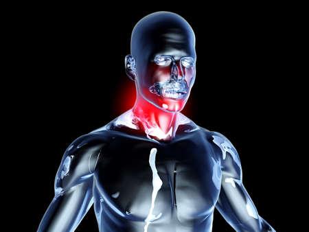 아픈: 의료 그림. 3D 그림을 렌더링합니다. 블랙에 격리.
