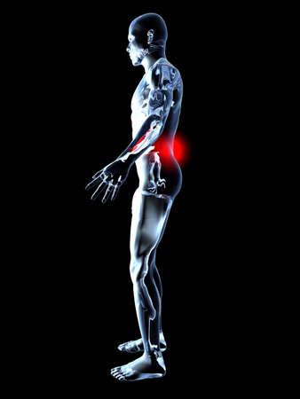 body damage: Medical Illustration. 3D rendered Illustration. Isolated on black. Stock Photo