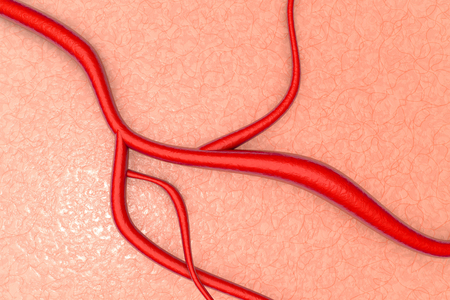 blood vessels: A blood vessel on organic Tissue. 3d illustration.
