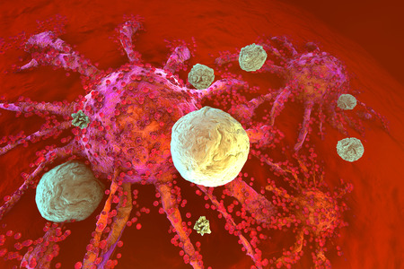 3D rendered Illustration of T-Cells of the immune System attacking growing Cancer cells.