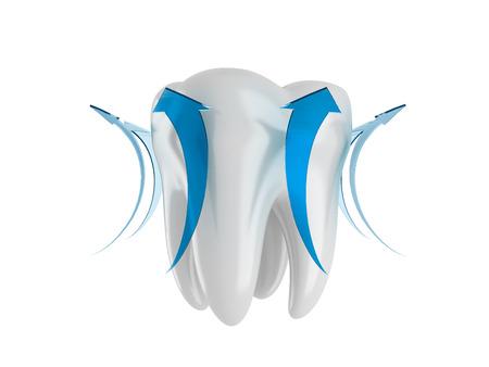 blue arrow: Healthy tooth with a blue arrow