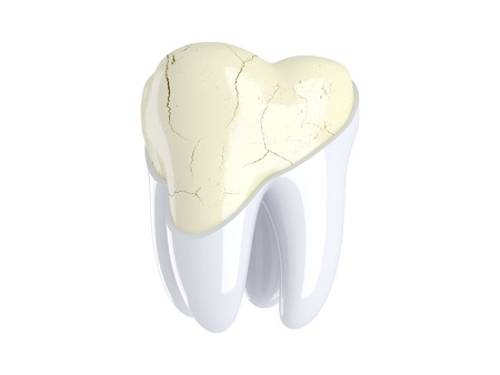 stratification: Cracks in the tooth. 3D render Stock Photo