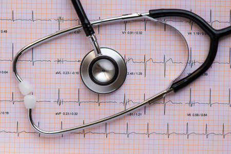 tachycardia: medical equipement Stethscope overlying an ECG or EKG Stock Photo