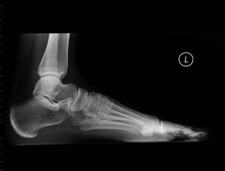 x ray: plain x ray of the left foot