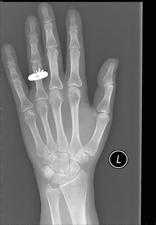 X-ray of left female hand with a wedding ring. photo
