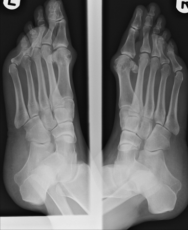 Xray of bunions photo