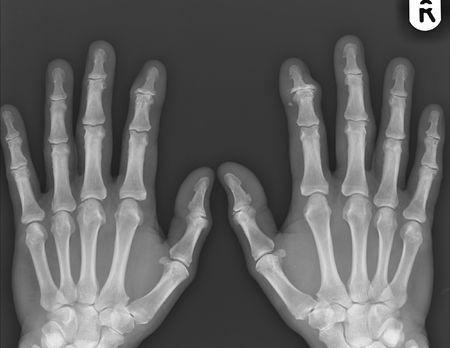 broken wrist: Llanura de rayos X de ambas manos  Foto de archivo