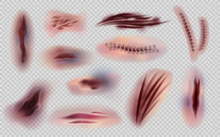 Realistic wounds and stitches. Cut skin and body marks and scratches isolated, bruises and injuries. Vector illustration body scars and skin wound set