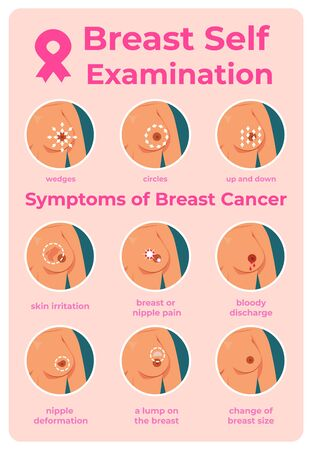 Breast cancer exam. Infographic of oncology tumor symptoms, cartoon young girl self examination. Vector diagnosis instructions to inspection woman mammography Иллюстрация