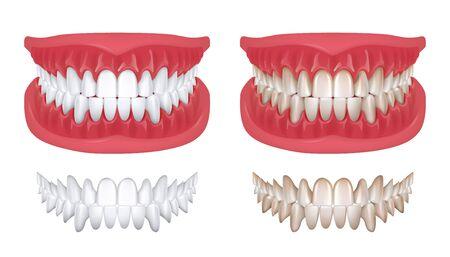 Dents réalistes. Sourire 3D blanc isolé pour la clinique d'orthodontie, concept de dentisterie avec rendu de la mâchoire blanche. Modèle de dents d'hygiène buccale vectorielle pour illustration de prothèse dentaire ou de sourire de beauté