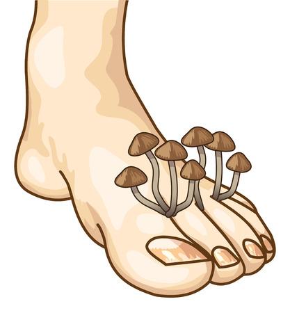 skin infections: Micosis entre los dedos. Ilustraci�n vectorial.